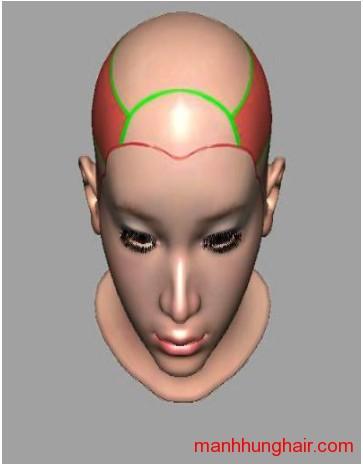 phân khu sọ